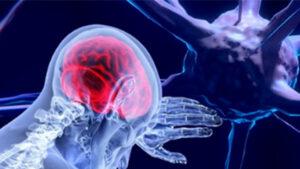 everis desarrolla una solución de asistencia en remoto para tratamientos de trastorno bipolar